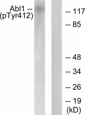 Western blot - c Abl (phospho Y412) antibody (ab55284)