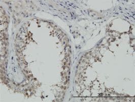 Immunohistochemistry (Formalin/PFA-fixed paraffin-embedded sections) - Anti-Hsp70 antibody (ab55288)