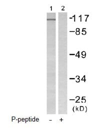 Western blot - FAK (phospho Y576) antibody (ab55335)