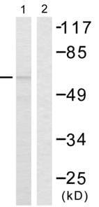 Western blot - Chk2 antibody (ab55365)
