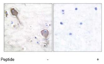 Immunohistochemistry (Paraffin-embedded sections) - Parkin antibody (ab55426)