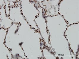 Immunohistochemistry (Formalin/PFA-fixed paraffin-embedded sections) - SGK1 antibody (ab55685)