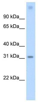 Western blot - VAX1 antibody (ab55964)