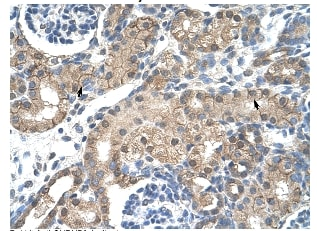 Immunohistochemistry (Formalin/PFA-fixed paraffin-embedded sections) - Anti-Nicotinic Acetylcholine Receptor beta 2 antibody (ab55980)