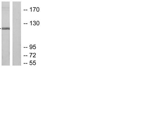 Western blot - Ribonuclease H2, subunit A antibody (ab55990)