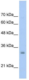 Western blot - NSBP1 antibody (ab56031)