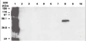 Western blot - Cytochrome P450 3A5 antibody [F18 P3 B6] (ab56076)