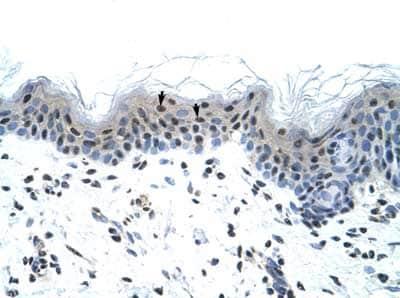 Immunohistochemistry (Paraffin-embedded sections) - Nav1.5 antibody (ab56240)