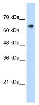 Western blot - ZNF326 antibody (ab56246)