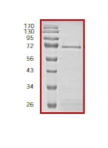 SDS-PAGE - CBP protein (Tagged) (ab56272)