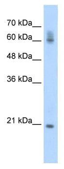 Western blot - FIP1L1 antibody (ab56293)