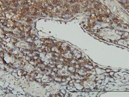IHC-P - STK16 antibody (ab56447)
