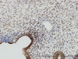 IHC-P - YAP1 antibody (ab56701)