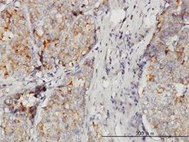 IHC-P - DOCK4 antibody (ab56743)