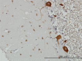 Immunohistochemistry (Formalin/PFA-fixed paraffin-embedded sections) - FARSLB antibody (ab56787)