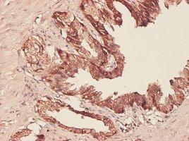 IHC-P - PHGDH antibody (ab57030)