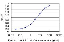 ELISA - TRPV5 antibody (ab57630)