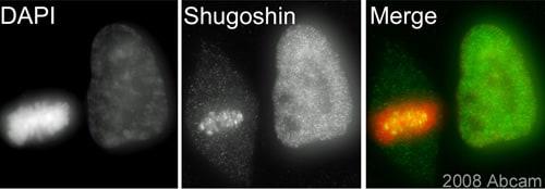 Immunocytochemistry/ Immunofluorescence - Shugoshin antibody (ab58023)