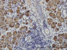 IHC-P - HIPK1 antibody (ab58136)
