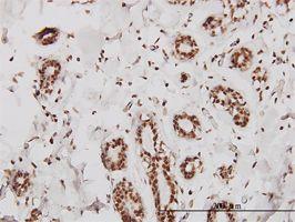 IHC-P - SMARCD2 antibody (ab58212)