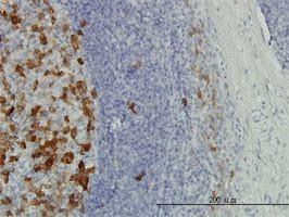 IHC-P - Thymidylate Synthase  antibody (ab58287)