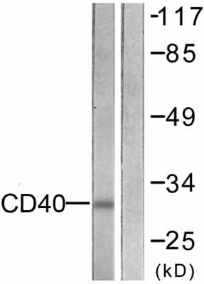 Western blot - CD40 antibody (ab58391)
