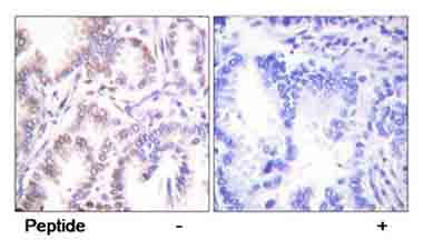 Immunohistochemistry (Paraffin-embedded sections) - Cdk7 antibody (ab58392)