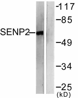 Western blot - SENP2 antibody (ab58418)