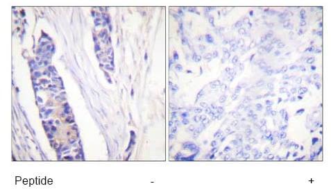 Immunohistochemistry - beta Tubulin antibody (ab58446)