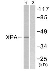 Western blot - XPA antibody (ab58464)