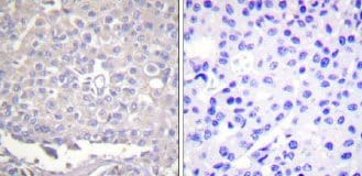 Immunohistochemistry (Formalin/PFA-fixed paraffin-embedded sections) - Integrin beta 1 (phospho T788) antibody (ab58476)