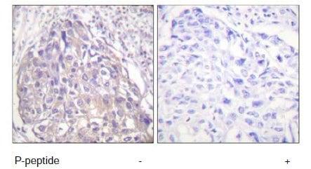 Immunohistochemistry (Paraffin-embedded sections) - FOXO1 + FOX3 + FOX4 (phospho T24 + T32) antibody (ab58517)