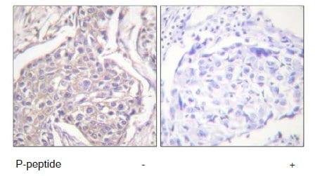 Immunohistochemistry (Paraffin-embedded sections) - Hsp20 (phospho S16) antibody (ab58522)