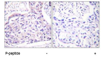 Immunohistochemistry (Paraffin-embedded sections) - IRS1 (phospho S323) antibody (ab58526)