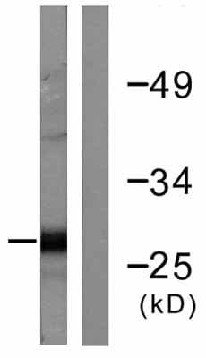 Western blot - cardiac Troponin I antibody (ab58544)