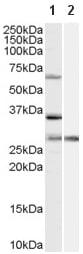 Western blot - PRPF31 antibody (ab58588)