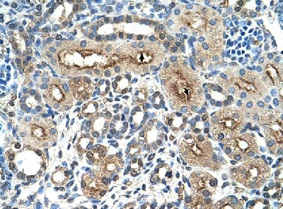 Immunohistochemistry (Formalin/PFA-fixed paraffin-embedded sections) - Anti-CD299 antibody (ab58603)