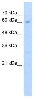 Western blot - KIAA0859  antibody (ab58604)