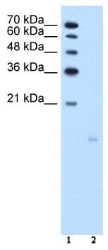 Western blot - PPFIBP1 antibody (ab58605)