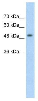 Western blot - MeCP2 antibody (ab58608)