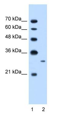 Western blot - C21orf7 antibody (ab58637)