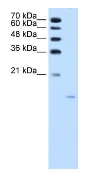Western blot - Acid Phosphatase antibody (ab58688)