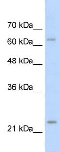Western blot - TNNI1 antibody (ab58783)