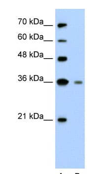 Western blot - Anti-Granzyme H antibody (ab58852)