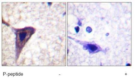 Immunohistochemistry (Paraffin-embedded sections) - Bid (phospho S78) antibody (ab59174)