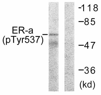 Western blot - Estrogen Receptor alpha (phospho Y537) antibody (ab59177)