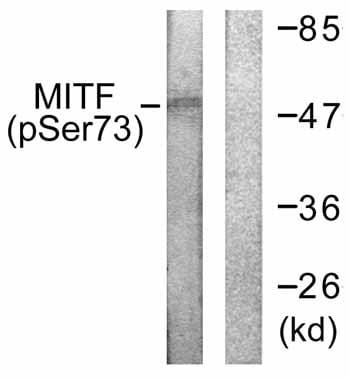 Western blot - MiTF (phospho S73) antibody (ab59201)