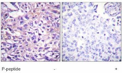 Immunohistochemistry (Paraffin-embedded sections) - Myosin Phosphatase (phospho T696) antibody (ab59202)