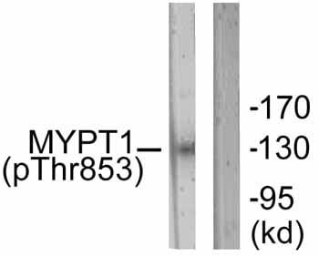 Western blot - Myosin Phosphatase (phospho T853) antibody (ab59203)