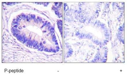 Immunohistochemistry (Paraffin-embedded sections) - Myosin Phosphatase (phospho T853) antibody (ab59203)